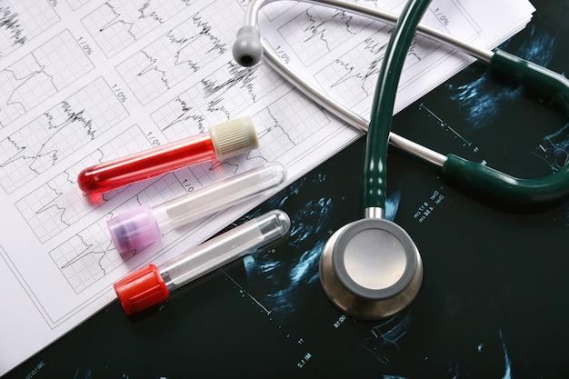 Teste de exame de sangue, surto de doença de coronavírus, pesquisa de vacinas e novos medicamentos para a pandemia de covid-19, equipamentos médicos para verificação de saúde