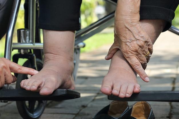 Teste de pressão de pés inchados de mulher idosa em cadeira de rodas