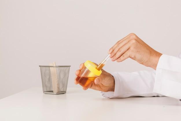Teste de urina e mãos do médico