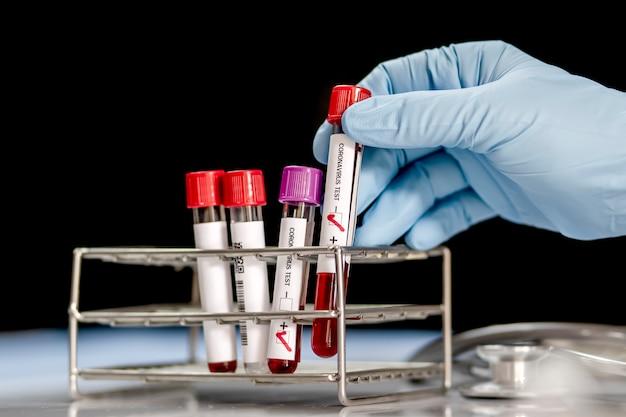 Teste do vírus corona em tubo de ensaio