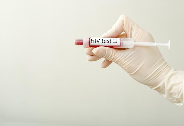 Teste médico de hiv aids. teste de hiv em médicos mão na luva em um fundo branco com espaço para texto. seringa de sangue, pesquisa, análise, medicina. amostra de sangue com etiqueta de teste de hiv na infecção pelo hiv.