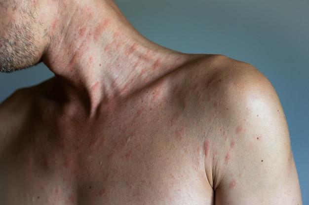 Textura de alergia ao eczema atópico da pele humana doente. homem com sintomas de urticária com coceira.