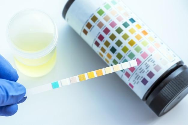 Tira reagente para análise de urina