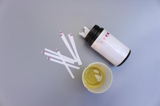 Tiras de análise à urina em um fundo cinza.
