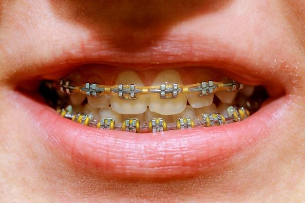 Tiro macro bonito dos dentes brancos com cintas.