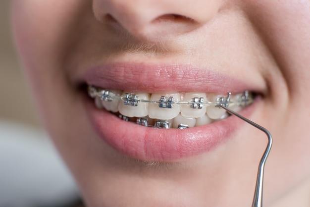 Tiro macro dos dentes com aparelho. sorrindo paciente do sexo feminino com suportes de metal no consultório odontológico