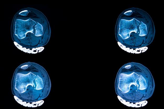 Tomografia computadorizada da fratura do planalto tibial do joelho direito de um paciente traumatizado