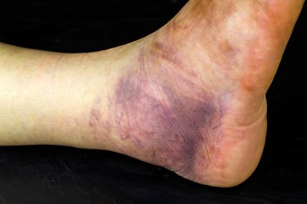 Tornozelo humano quebrado. um enorme hematoma roxo na perna de um homem.