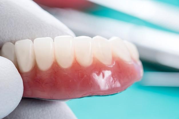 Trabalho de implante dentário concluído e pronto para uso / abutment temporário de implante dentário