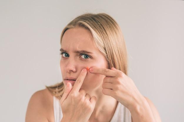 Tratamento de acne. mulher com acne. jovem mulher apertando a espinha, removendo a espinha do rosto. cuidados com a pele da mulher. menina do cuidado da beleza do skincare do ponto da espinha do ponto da acne que pressiona na cara do problema de pele.