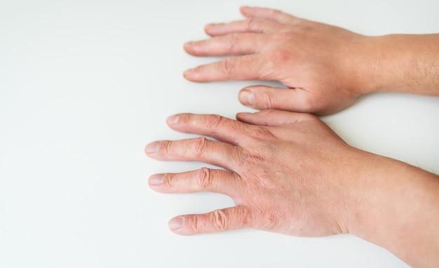 Tratamento de doenças de pele. psoríase, eczema, dermatite, diátese em mãos humanas. o conceito de medicina e tratamento na direção da dermatologia.