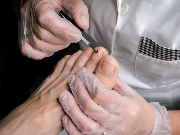 Tratamento de esmaltes terapêuticos nos pés.