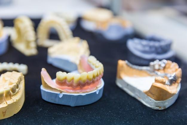 Tratamento de próteses, closeup de implantes dentários