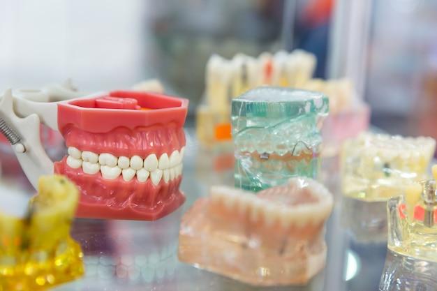Tratamento de próteses, implantes dentários, ortodôntico