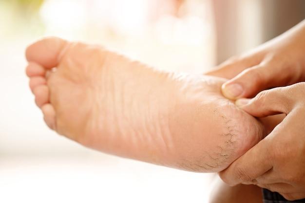 Tratamento do calcanhar rachado o creme para os pés deve ser aplicado regularmente. esfregue e massageie os calcanhares para que o creme seja bem absorvido. ajuda a adicionar umidade à pele dos pés