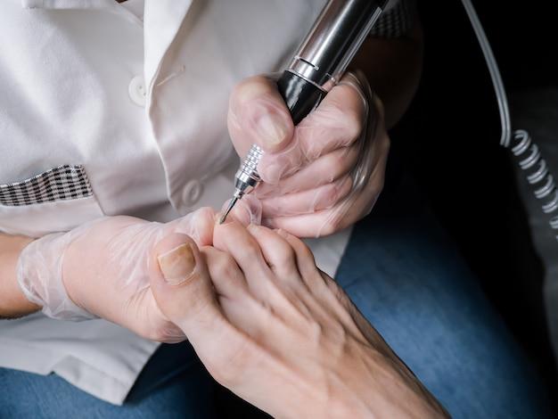 Tratamento do cortador de cutículas nas unhas dos pés.