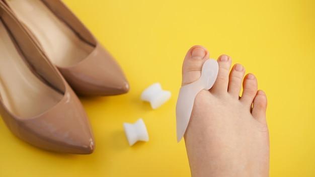 Tratamento e prevenção do hálux valgo. separador de dedo em silicone. pernas em um fundo amarelo. sapatos em um fundo desfocado