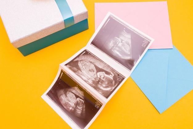 Três fotos de ultrassom e envelopes na vista superior do espaço de cópia de fundo amarelo, menino ou menina, conceito de gravidez