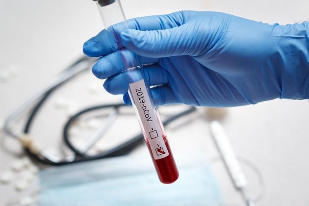 Tubo de análise de sangue na mão do médico, teste de mers-cov coronavirus rótulo positivo no tubo de análise de sangue do hospital para análise. infecção pelo vírus 2019-ncov originária de wuhan, china