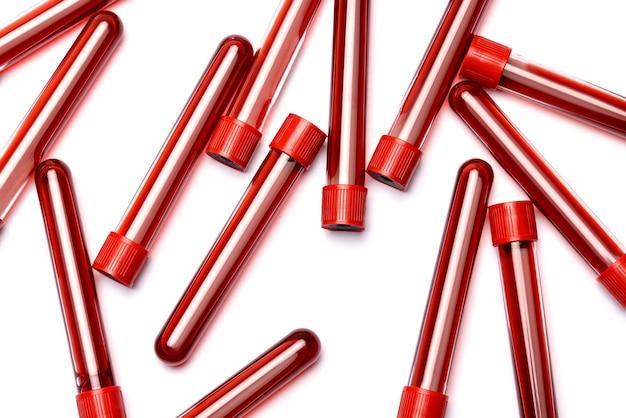Tubo de ensaio de sangue com ficha vermelha isolada no fundo branco.