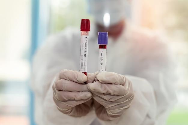 Tubo de ensaio em mão feminina com amostra de sangue para equipamento de teste