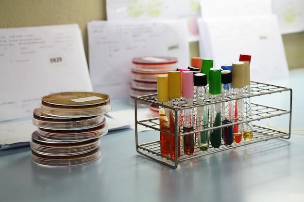 Tubo de ensaio no laboratório