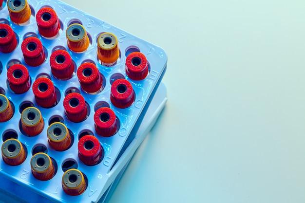 Tubos com amostras de sangue na mesa do laboratório