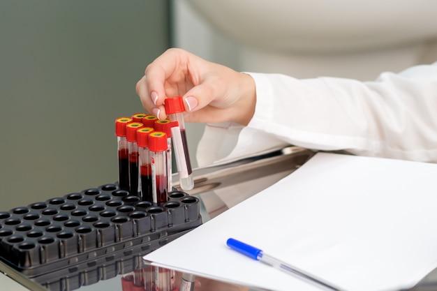 Tubos de amostra de sangue nas mãos