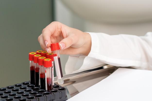 Tubos de amostra de sangue nas mãos.