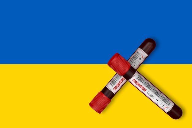 Tubos de ensaio com a inscrição 2019-ncov no fundo da bandeira da ucrânia. renderização 3d