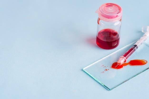 Tubos de ensaio com sangue em laboratório