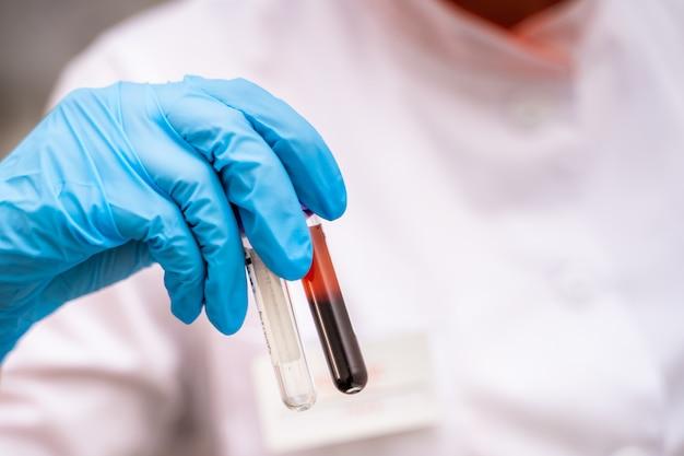 Tubos de ensaio com sangue na mão