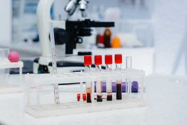 Tubos de ensaio médico com close-up de exames de sangue em laboratório