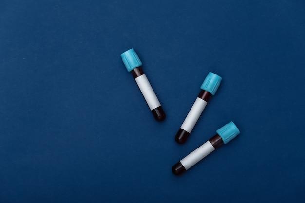 Tubos de ensaio médico com sangue em um fundo azul clássico. vista do topo