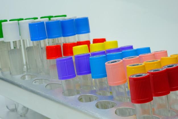 Tubos de laboratório