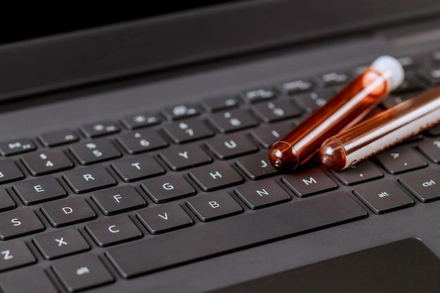 Tubos de sangue de equipamentos médicos em stand com trabalho em computador laptop no consultório médico