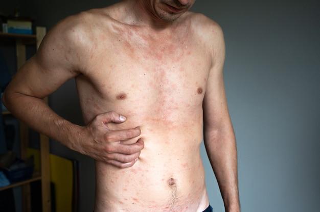Um adulto infectado com o vírus da varicela e bolhas vermelhas que coçam e aparecem por todo o corpo com febre.
