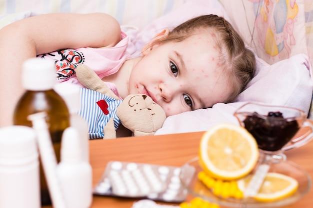 Um bebê na cama com varicela e drogas na frente dele em cima da mesa