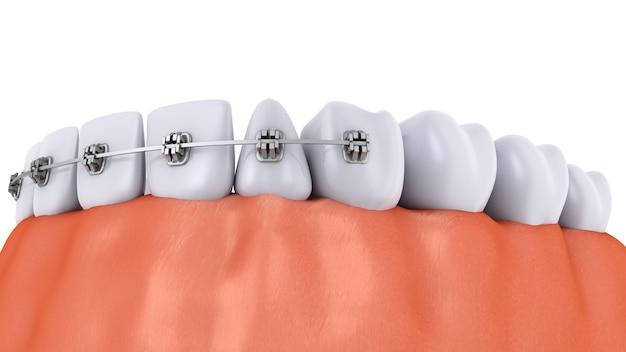 Um dente com aparelho e implantes dentários