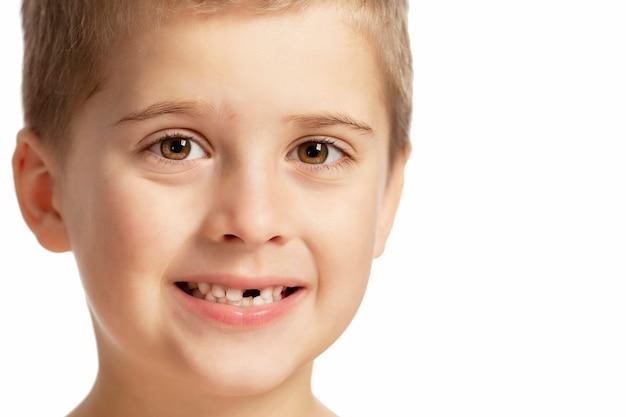 Um garoto sem dente da frente sorri. isolado sobre o fundo branco