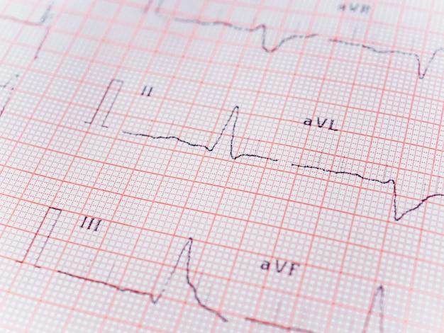 Um gráfico real de um ecg. eletrocardiograma registrado em papel. atividade elétrica do coração. concepções médicas e de saúde. foco seletivo. fechar-se. peça de ecg. espaço livre para escrever.