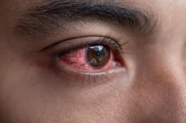 Um homem com olhos vermelhos e irritados