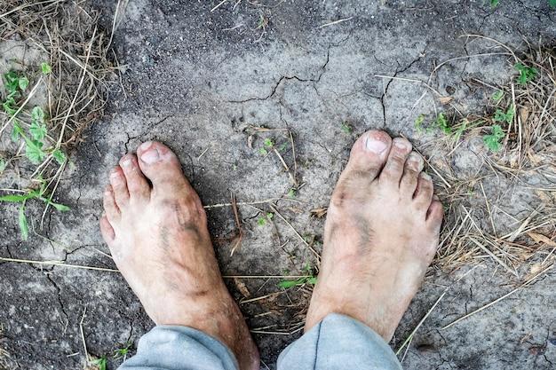 Um homem com os pés sujos está no chão rachado com o calor