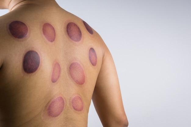 Um homem de volta com marcas de sangue massageadas