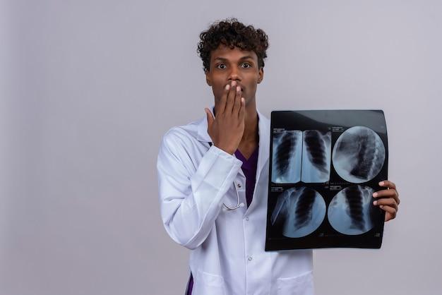 Um jovem médico chocado, bonito, de pele escura, cabelo encaracolado, jaleco branco e estetoscópio mostrando relatório de raio-x