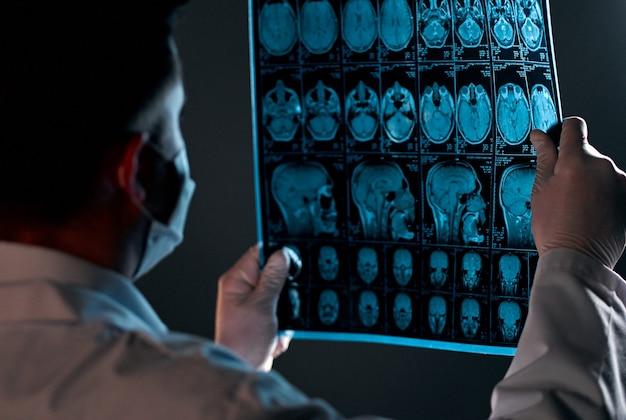 Um médico com uma máscara examina um raio-x ou ressonância magnética de uma varredura do cérebro de um paciente isolada no preto.