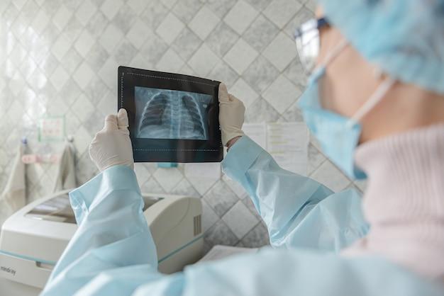 Um médico está examinando uma radiografia de um paciente com coronavírus.