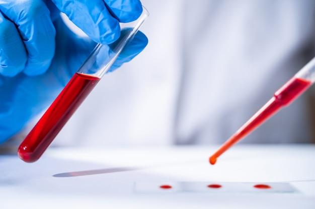 Um médico faz um exame de sangue sob um microscópio. tubos de ensaio com sangue em laboratório