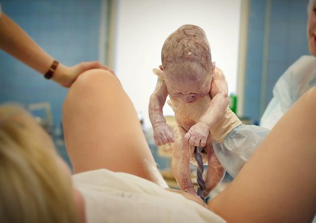 Um médico no hospital segura um bebê recém-nascido, o médico mostra o bebê recém-nascido à mãe.