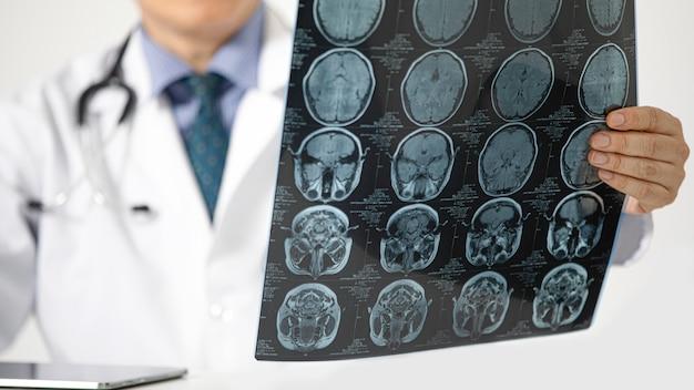 Um médico olhando para uma ressonância magnética
